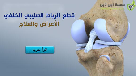 إصابة وقطع الرباط الصليبي الخلفي الأعراض التشخيص والعلاج