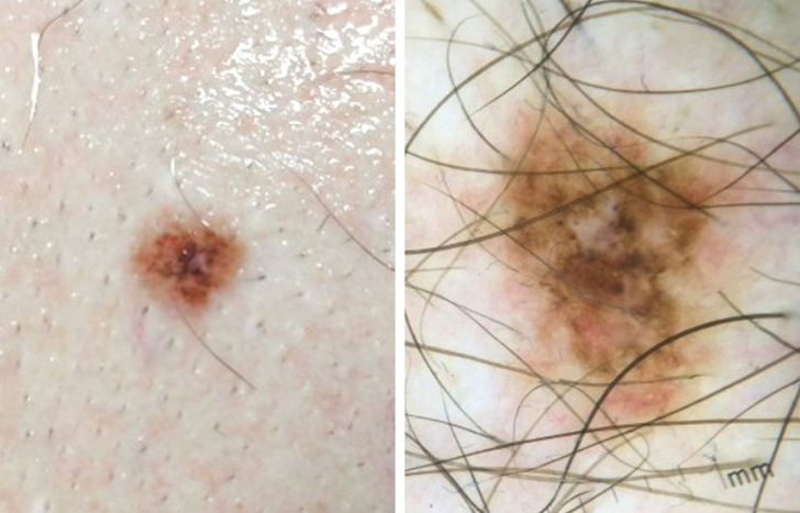 علامات الاصابة بسرطان الجلد