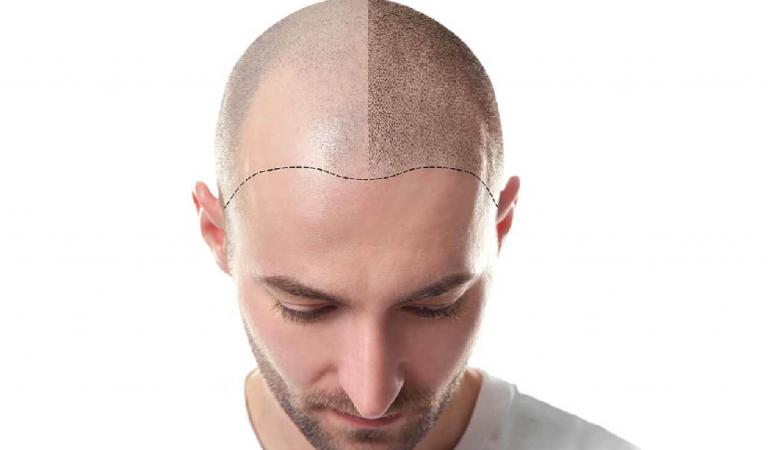 زراعة الشعر كل ما تود معرفته عن عمليات زراعة الشعر