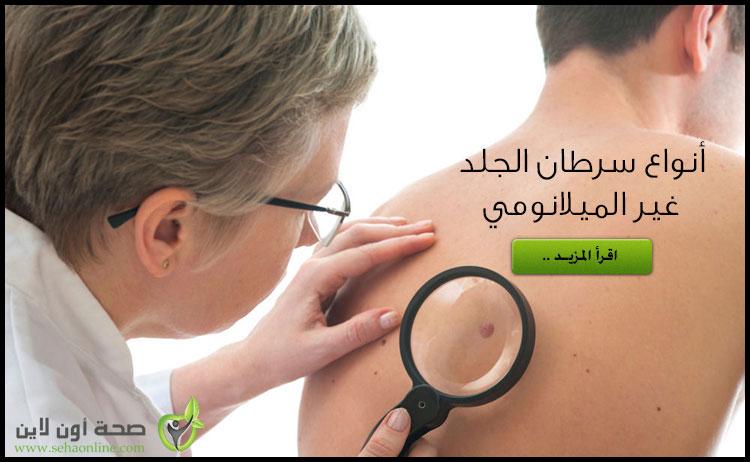 سرطان الجلد غير الميلانومي (1) تعرف على أنواع وأعراض سرطان الجلد