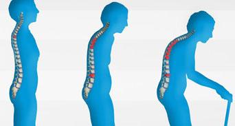 هشاشة العظام لدى السيدات الأسباب والعلاج