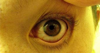 ست طرق للتخلص من احمرار العين وإرهاقها ؟