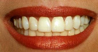 تبييض الأسنان طرق خطيرة وأخرى آمنة؟