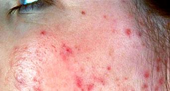 نصائح للعناية بالبشرة المصابة بمرض الوردية