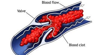 هل تسبب حبوب منع الحمل جلطات الدم؟