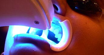 الآثار الجانبية لتبييض الأسنان عبر المواد الصيدلانية وعمليات الليزر