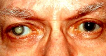 اعتام العين أو الساد أنواعه وأعراضه