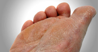 الفطريات بين أصابع القدمين مشكلة لها عدة حلول