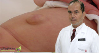 الفتق شائع الحدوث عند الأطفال وكيفية علاجه جراحياً