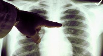 اعراض سرطان الرئة أنواعه وأسبابه