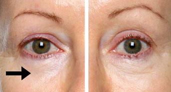 علاج انتفاخ العين و أسبابها