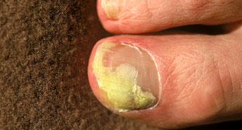 أنواع فطريات الأظافر وأسباب الإصابة بها