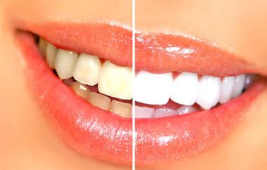 كيفية علاج اصفرار الأسنان