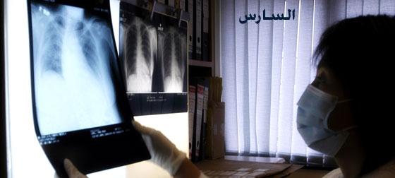 الالتهاب الرئوي الحاد الأعراض الوقاية والعلاج