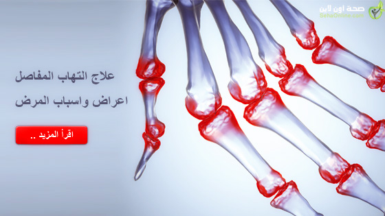 علاج التهاب المفاصل اعراض واسباب المرض