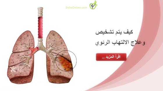 كيف يتم تشخيص وعلاج الالتهاب الرئوي