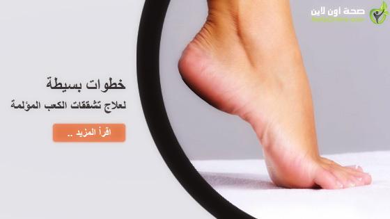 خطوات بسيطة لعلاج تشققات الكعب المؤلمة