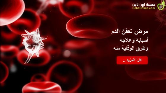 مرض تعفن الدم أسبابه وعلاجه وطرق الوقاية منه