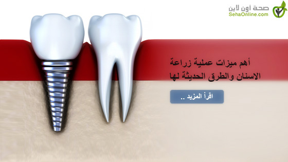 أهم ميزات عملية زراعة الاسنان والطرق الحديثة لها