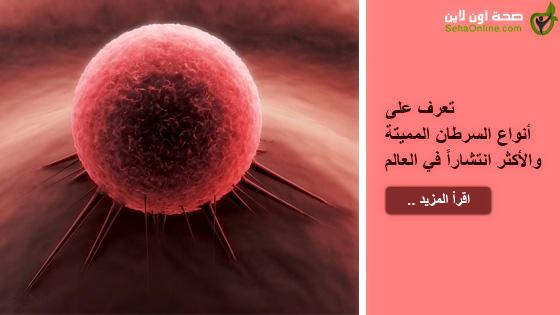 تعرف على أنواع السرطان المميتة والأكثر انتشاراً في العالم