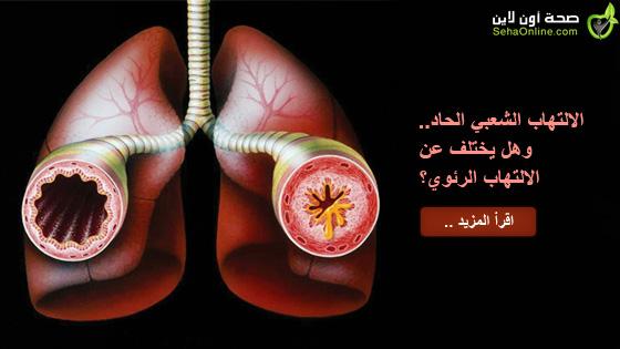 الالتهاب الشعبي الحاد وهل يختلف عن الالتهاب الرئوي