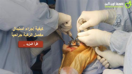 كيفية إجراء استبدال مفصل الركبة جراحياً