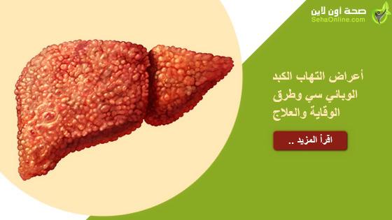 أعراض التهاب الكبد الوبائي سي وطرق الوقاية والعلاج