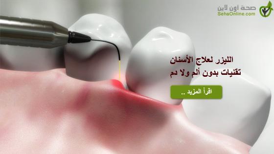الليزر لعلاج الأسنان تقنيات بدون ألم ولا دم