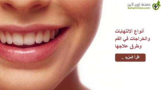 أنواع الالتهابات والخراجات في الفم وطرق علاجها