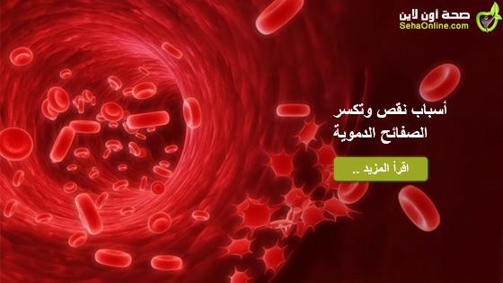 أسباب نقص وتكسر الصفائح الدموية