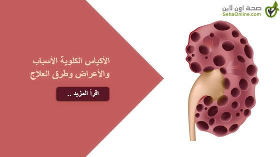 الأكياس الكلوية الأسباب والأعراض وطرق العلاج