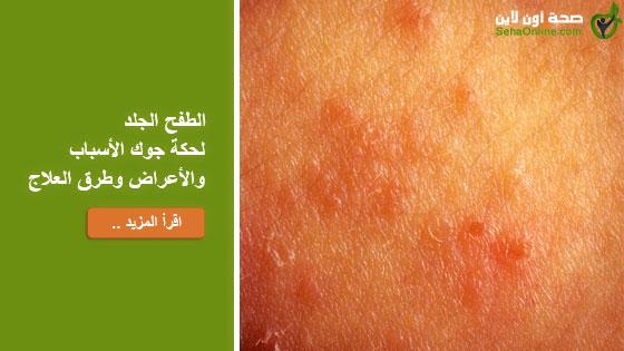 الطفح الجلد لحكة جوك الأسباب والأعراض وطرق العلاج