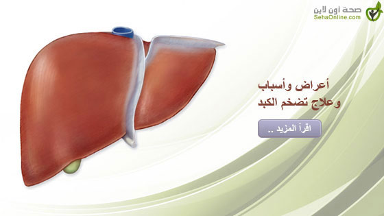 أعراض وأسباب وعلاج تضخم الكبد