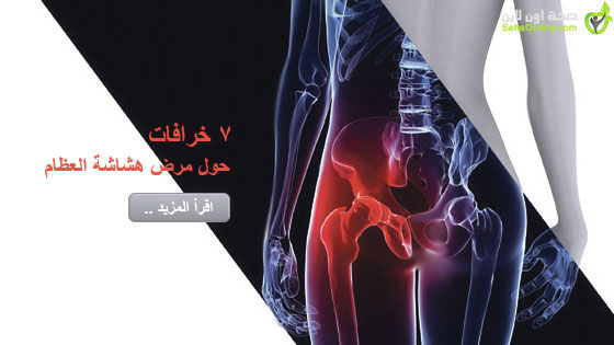 7 خرافات حول مرض هشاشة العظام