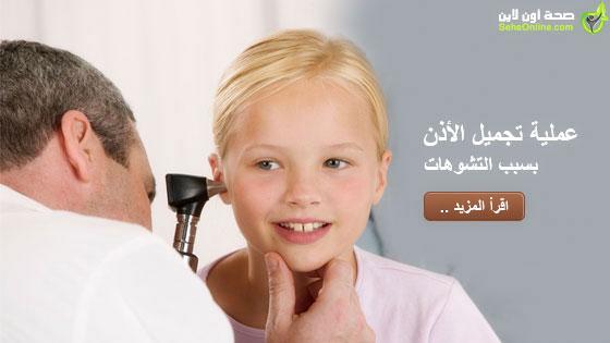 عملية تجميل الاذن بسبب التشوهات