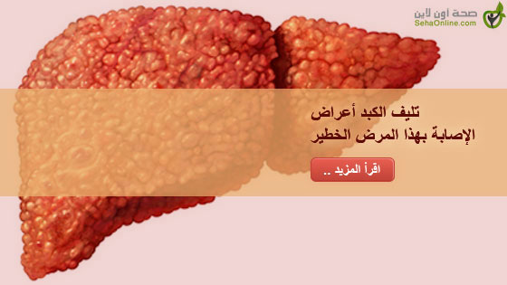 تليف الكبد أعراض الإصابة بهذا المرض الخطير