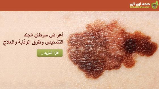 أعراض سرطان الجلد التشخيص وطرق الوقاية والعلاج