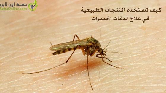 كيف تستخدم المنتجات الطبيعية في علاج لدغات الحشرات
