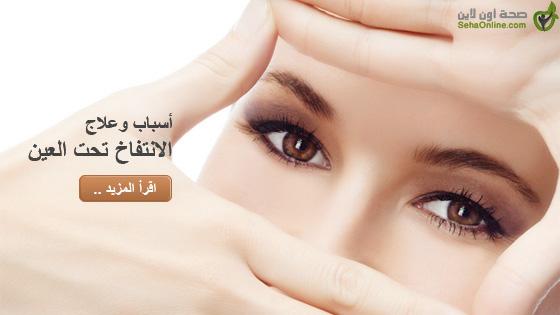أسباب وعلاج الانتفاخ تحت العين