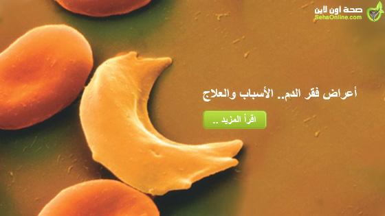 أعراض فقر الدم الأسباب والعلاج