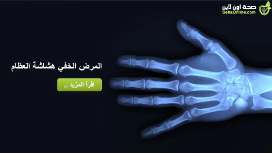 المرض الخفي هشاشة العظام
