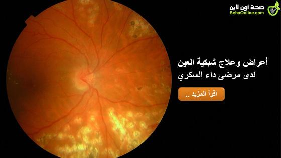 أعراض وعلاج شبكية العين لدى مرضى داء السكري