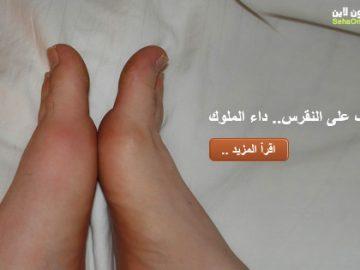 مرض النقرس