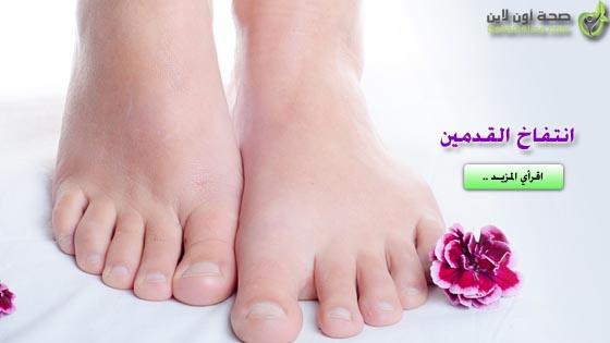 اسباب انتفاخ القدمين وعلاج انتفاخ القدمين