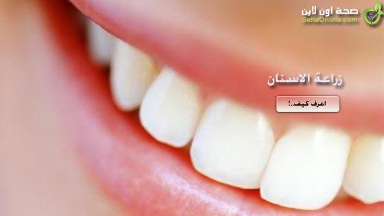 زراعة الاسنان كل شيء عن زراعة الاسنان وطقم الاسنان