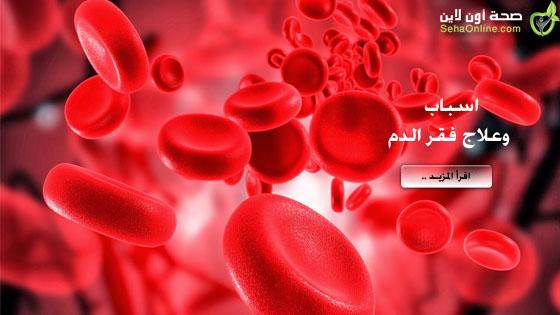 فقر الدم كل شيء عن فقر الدم بحوار مع الأخصائية إيمان الشرقي