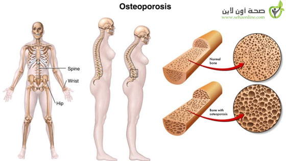 اعراض وعلاج هشاشة العظام أفضل 3 طرق لعلاج هشاشة العظام