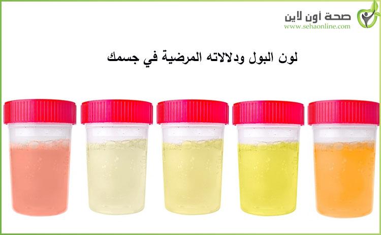 لون البول دلالات لون البول وتفسير كل لون طبياً