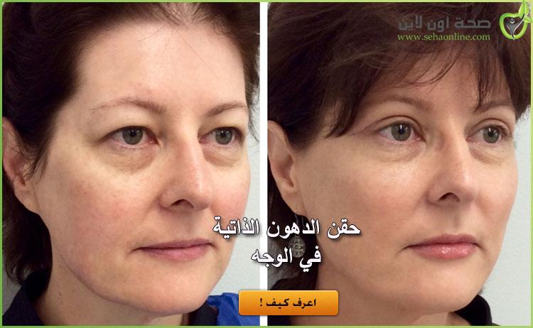 اعرف كل شيء عن عملية حقن الدهون الذاتية في الوجه