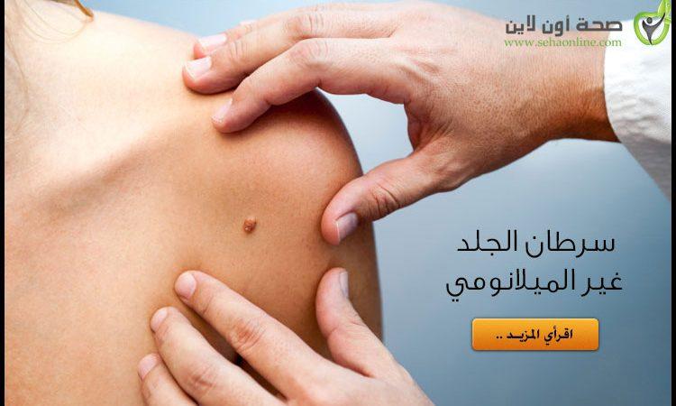 سرطان الجلد غير الميلانومي (2) .. أسبابه وعلاجه وكيفية تشخيصه